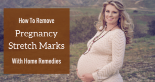 How to remove pregnancy stretch marks with home remedies