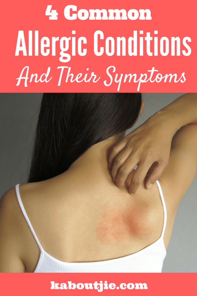 4 Common Allergic Conditions and Their Symptoms