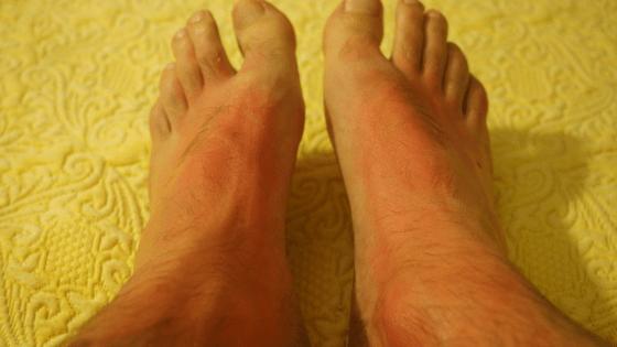 Rash feet legs