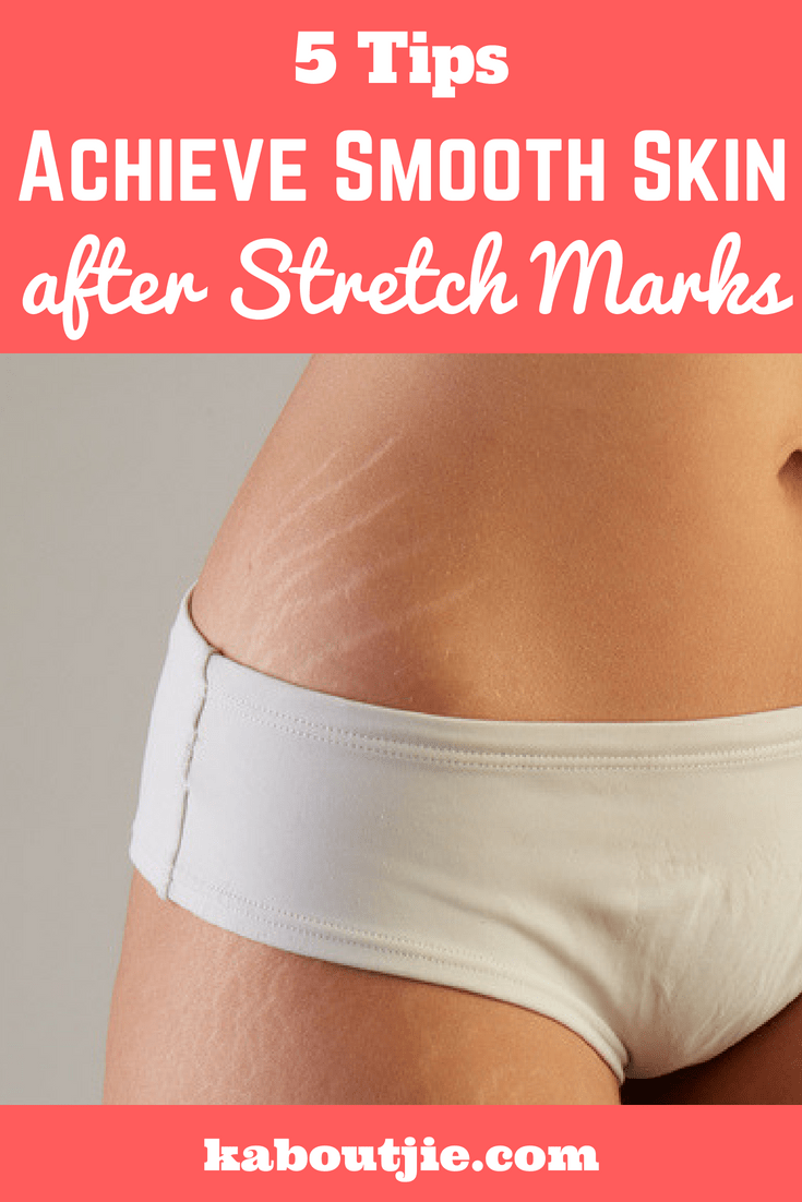 5 Tips Oh Now To Achieve Smooth Skin After Stretch Marks