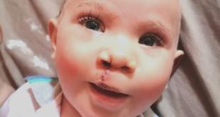Cleft Lip Repair Procedure