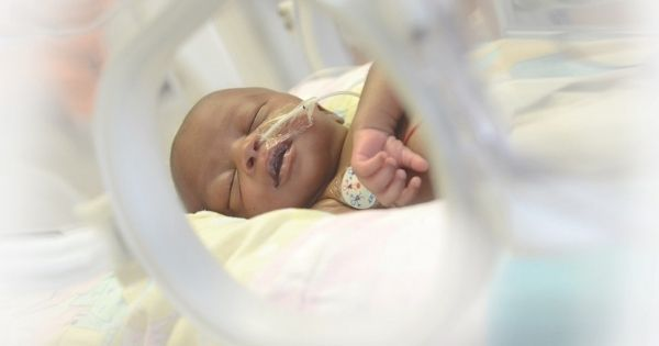 Premature babies born in SA